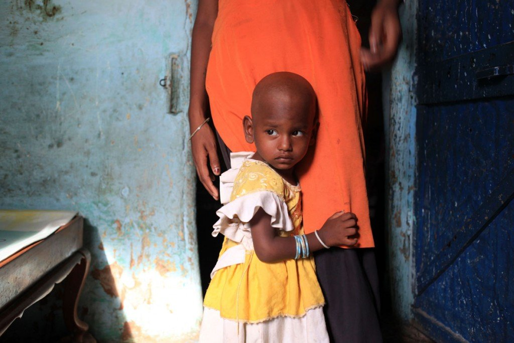 Young girl with TB.